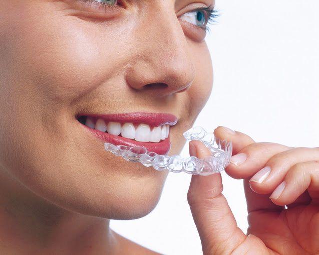 que-son-los-alineadores-dentales